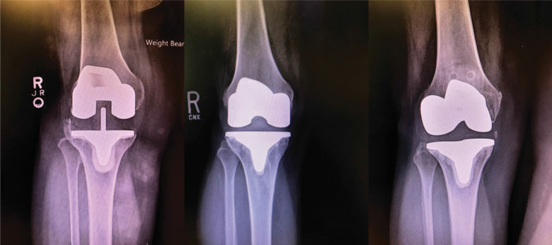 Anteroposterior radiographs prior to revision surgery.